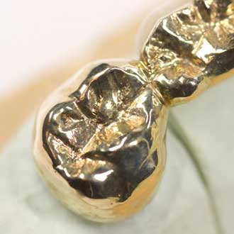 Where to sell my dental gold