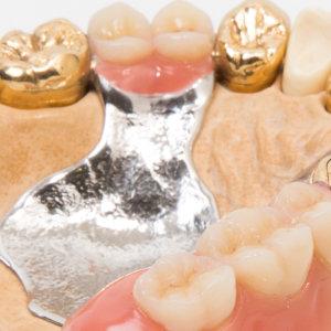Sell Dental Gold